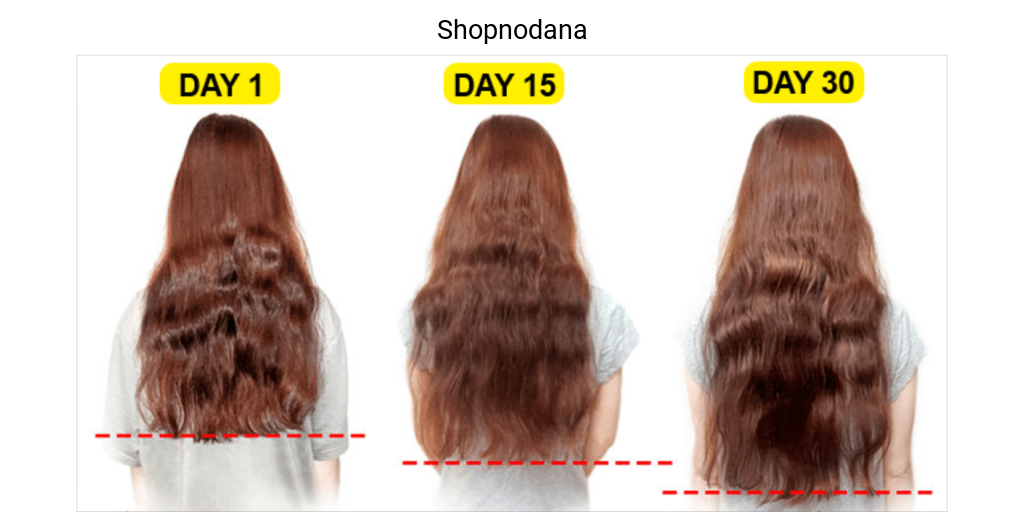 Vitamins for hair growth-Shopnodana.com