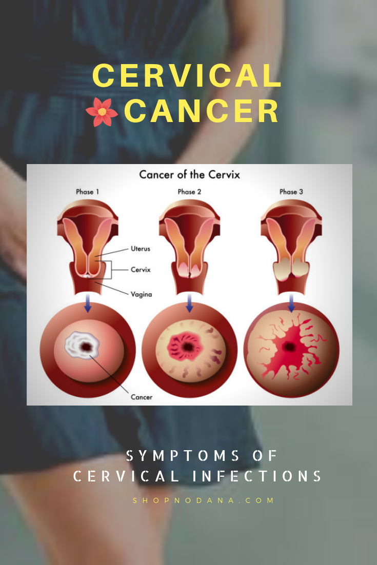 Symptoms of cervical infections