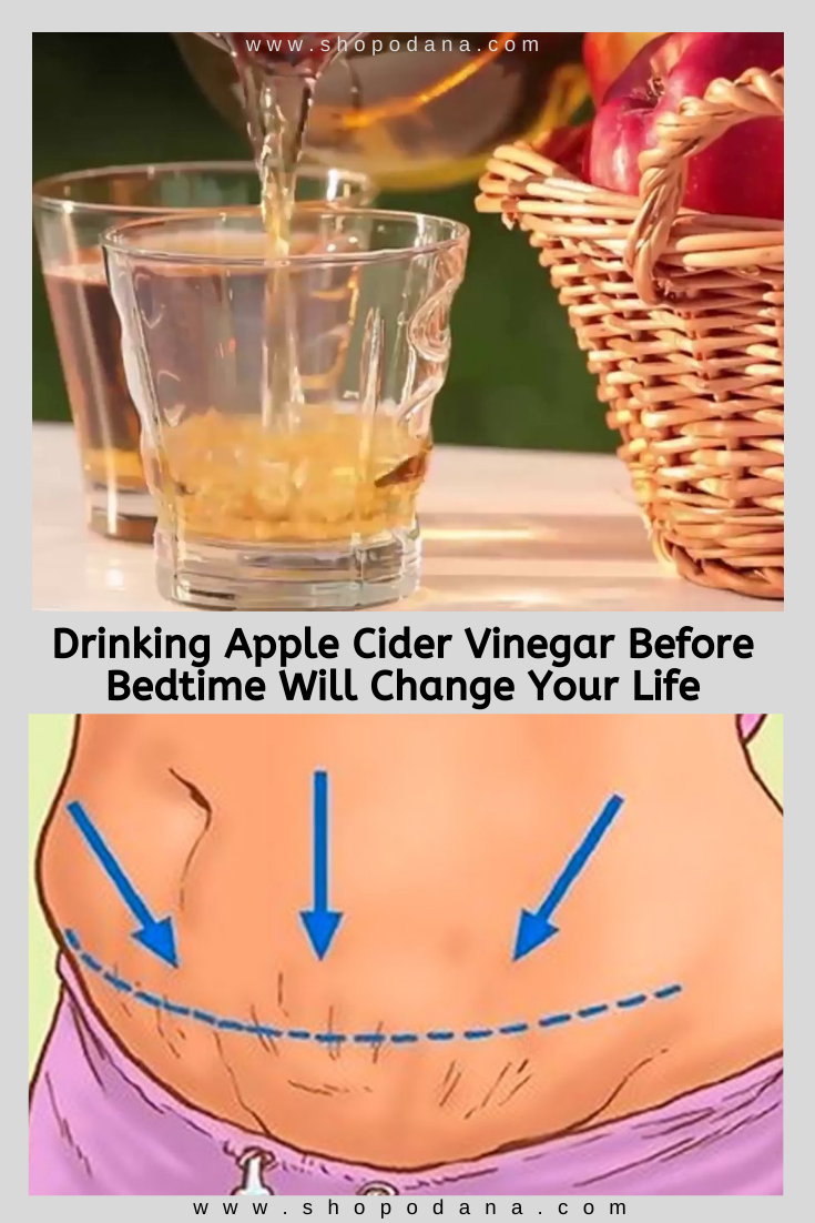 Apple cider vinegar for weight loss-shopnodana