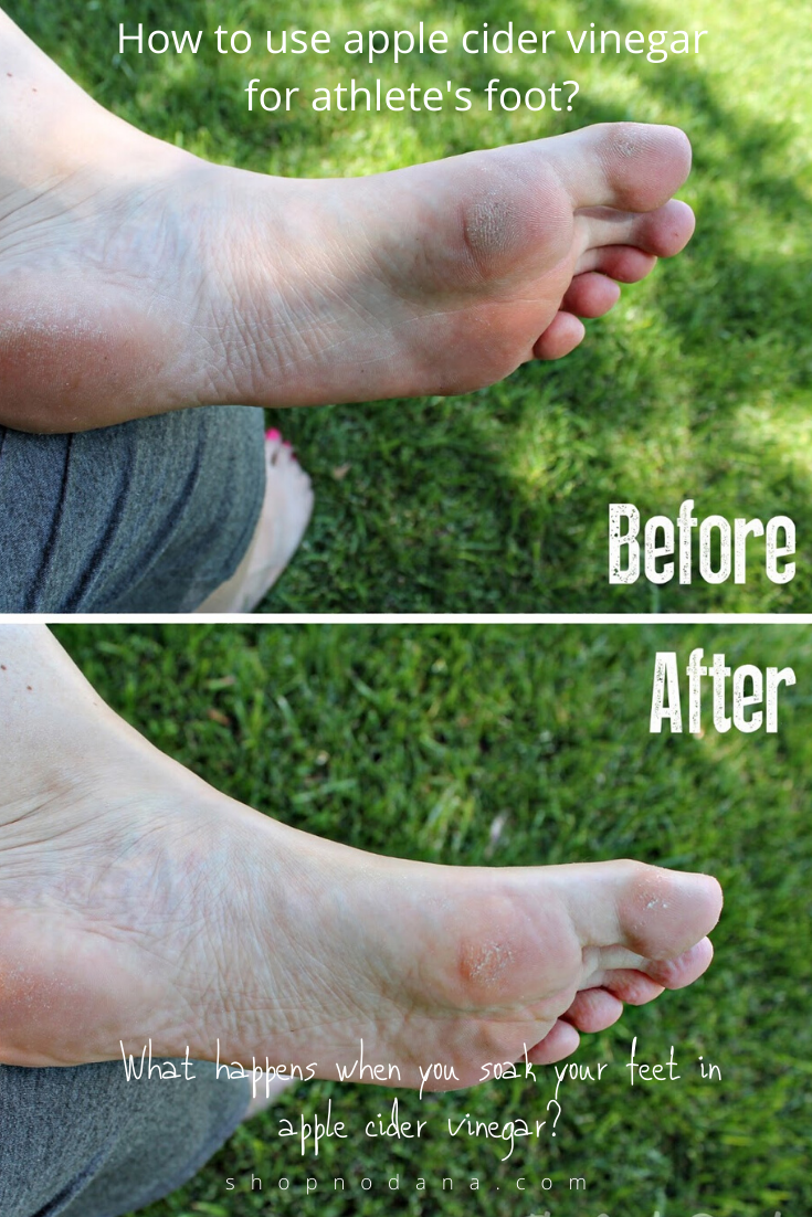 How to use apple cider vinegar for athlete's foot