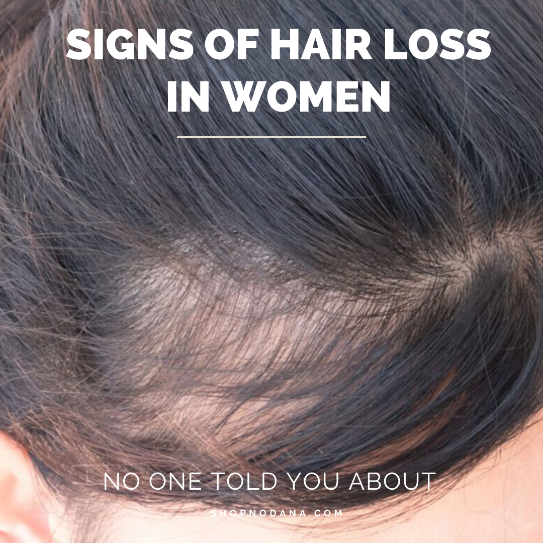 Signs of hair loss in women