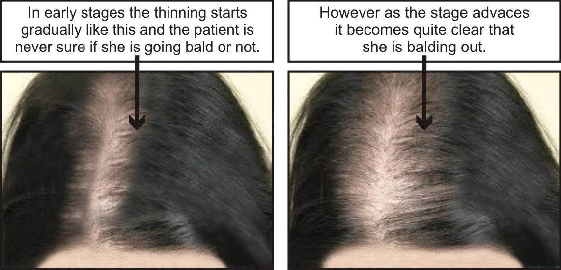 Hereditary hair loss in women