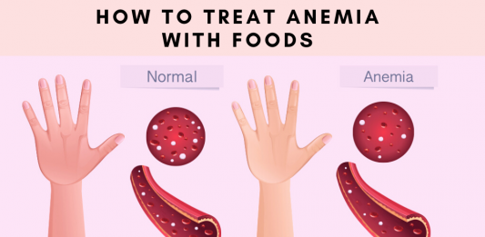 How To Treat Anemia With Foods- 20 Best Home Remedies