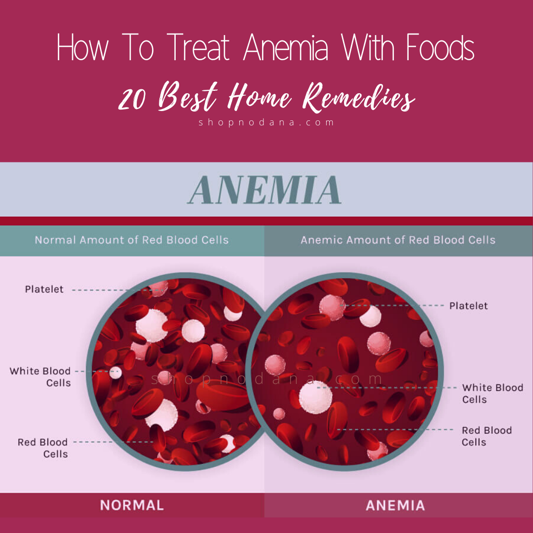 How To Treat Anemia With Foods