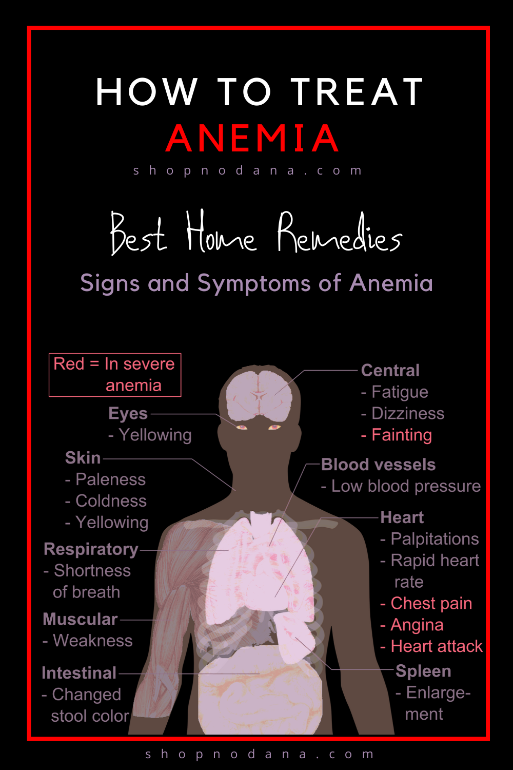 How to treat Anemia- Signs and Symptoms of Anemia