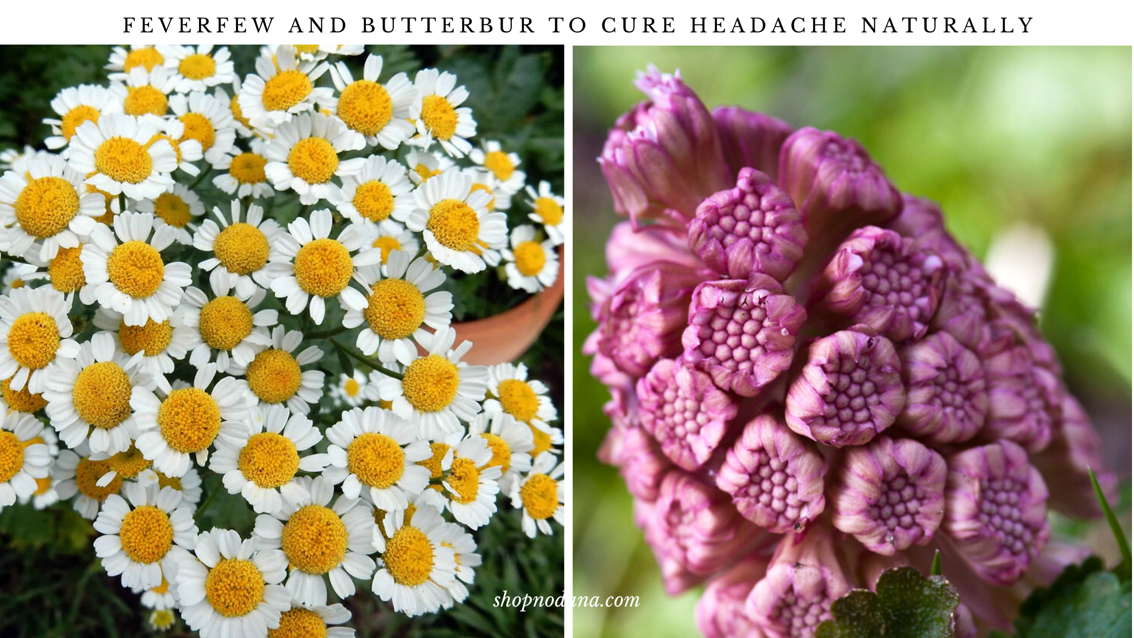 Feverfew and butterbur to cure headache naturally
